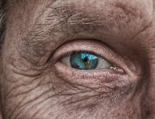 Slik bremser du hudens aldring!